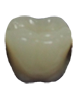 Picture of Digital Dentures (BlueSkyBio.com)